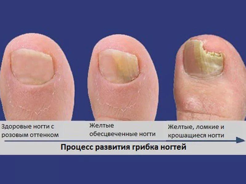 Как лечить грибок на ногтях ног в дом условиях
